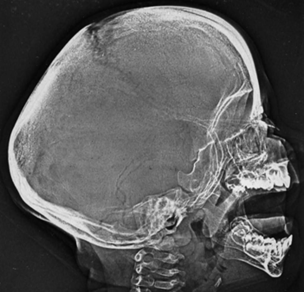 sagittal suture fusion - HD1024×986