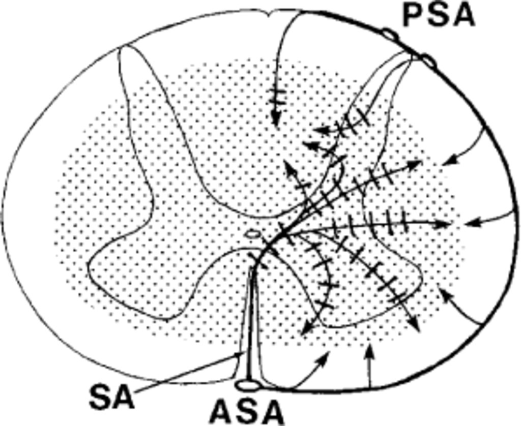 vascular mechanisms in the pathophysiology of human spinal cord Dura Arachnoid and Pia Mater fig 9