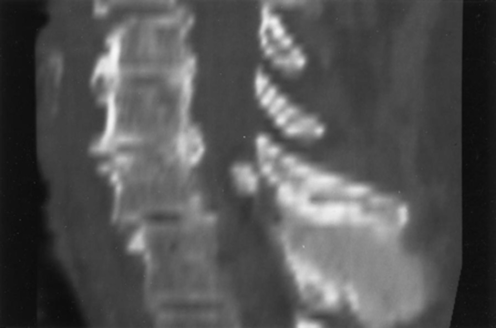 Calcium carbonate apatite deposition in the cervical spine