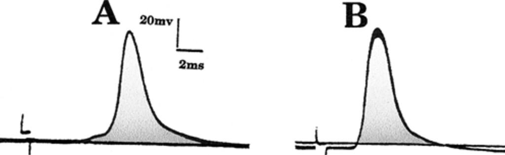 Selective motor hyperreinnervation using motor rootlet