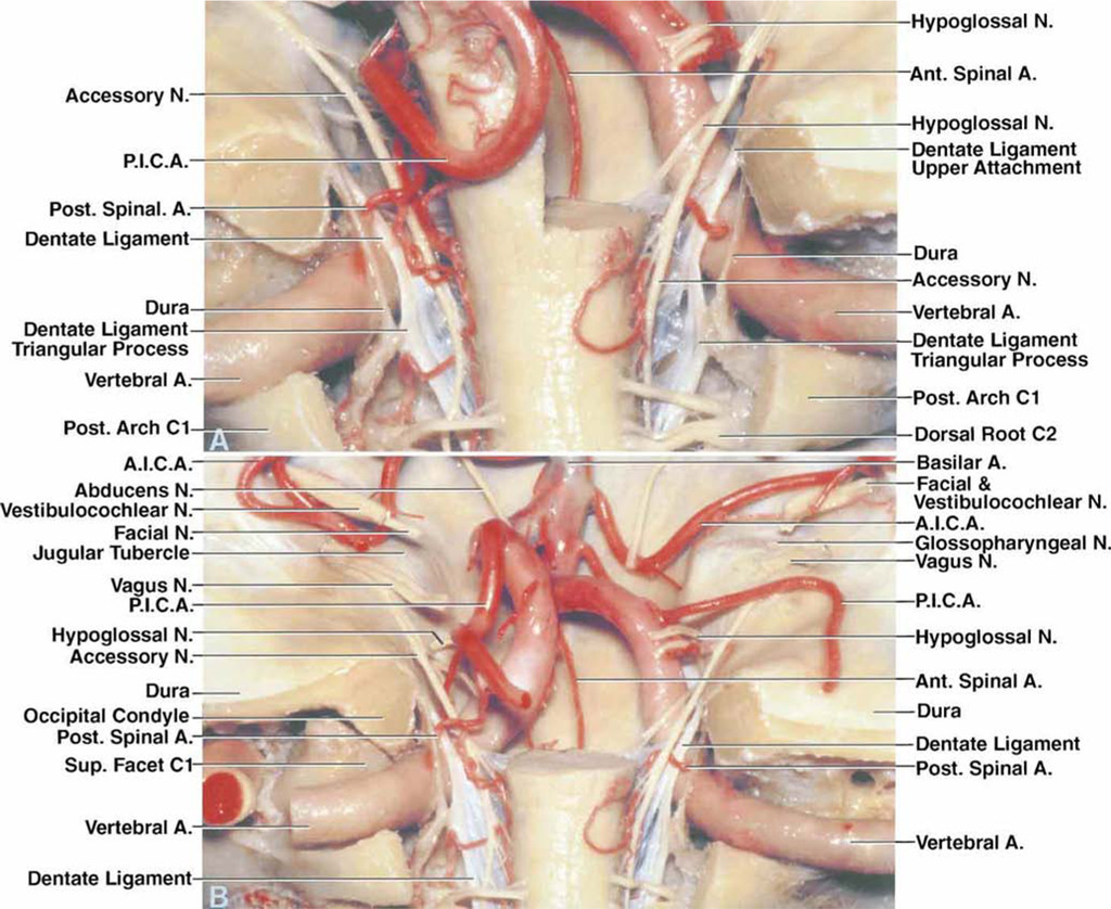 Microsurgical anatomy of the transcondylar, supracondylar