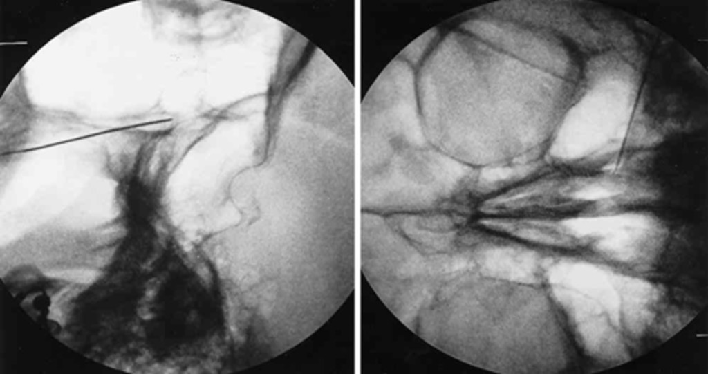 sphenopalatine foramen classification essay