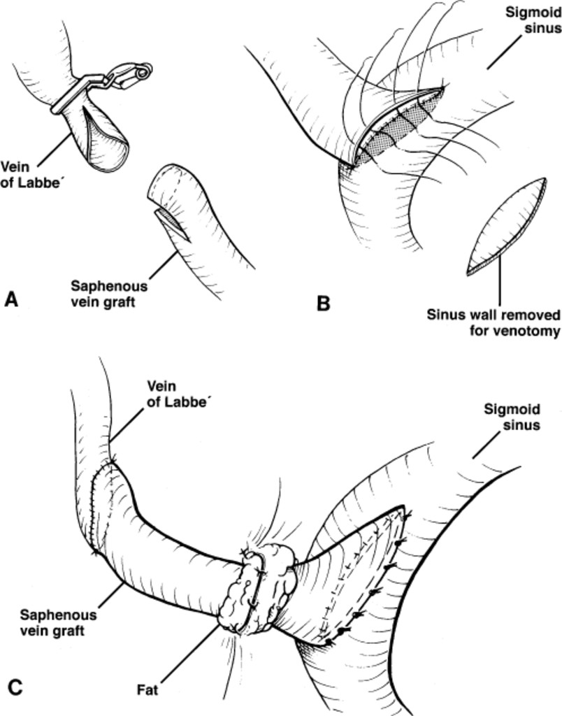 Reconstruction Of The Vein Of Labb By Using A Short Saphenous Vein