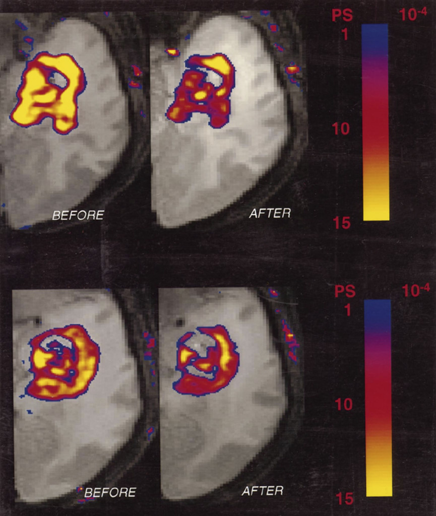 Early changes measured by magnetic resonance imaging in