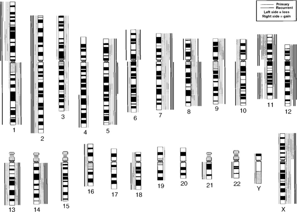Multiple genetic aberrations including evidence of