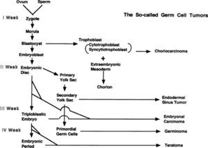 Pathogenesis Of Intracranial Germ Cell Tumors Reconsidered In Journal Of Neurosurgery Volume 90 Issue 2 1999