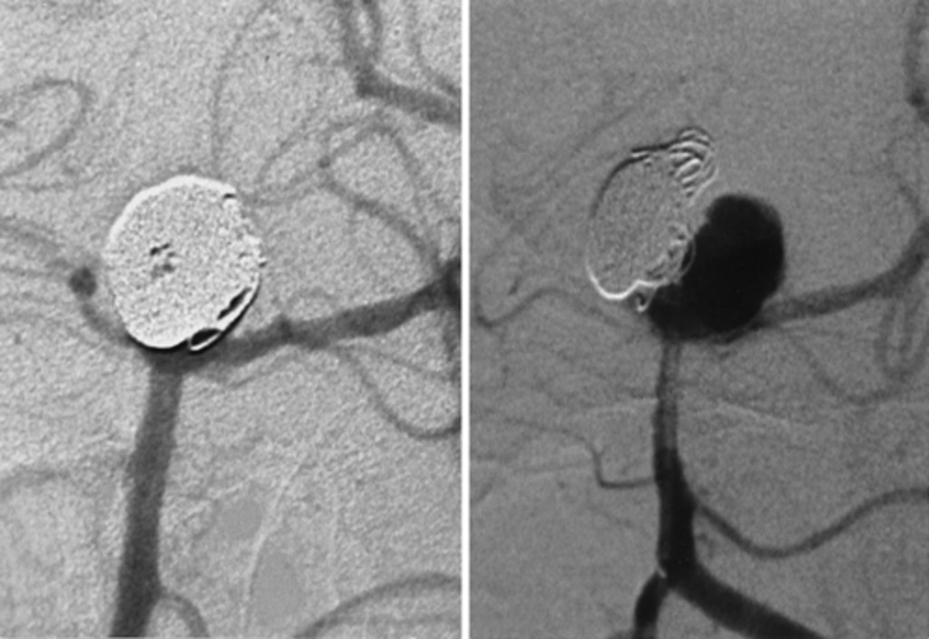Five Year Experience In Using Coil Embolization For Ruptured