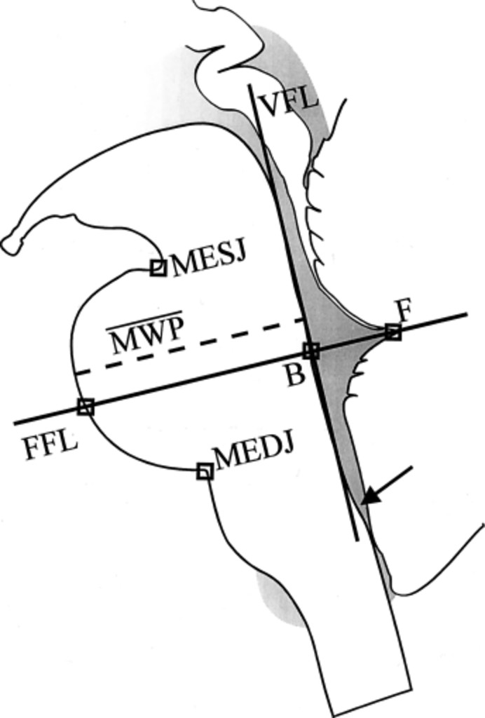 A Brainstem Stereotactic Atlas In A Three Dimensional Magnetic