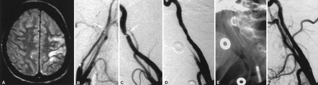 Patient presentation, angiographic features, and treatment