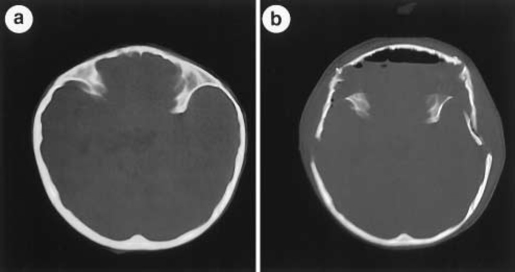 Fibroblast growth factor receptor 3 mutation in nonsyndromic coronal