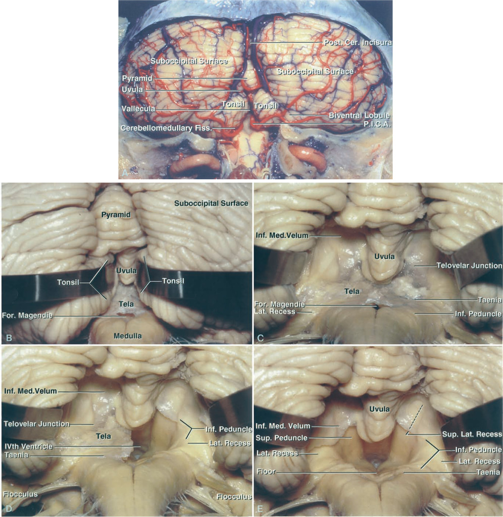 Telovelar approach to the fourth ventricle: microsurgical anatomy ...