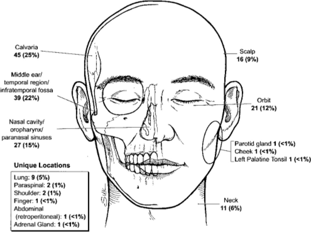 Primary extradural meningiomas: a report on nine cases and