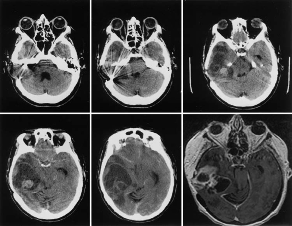 Glioblastoma multiforme occurring in a patient treated with gamma