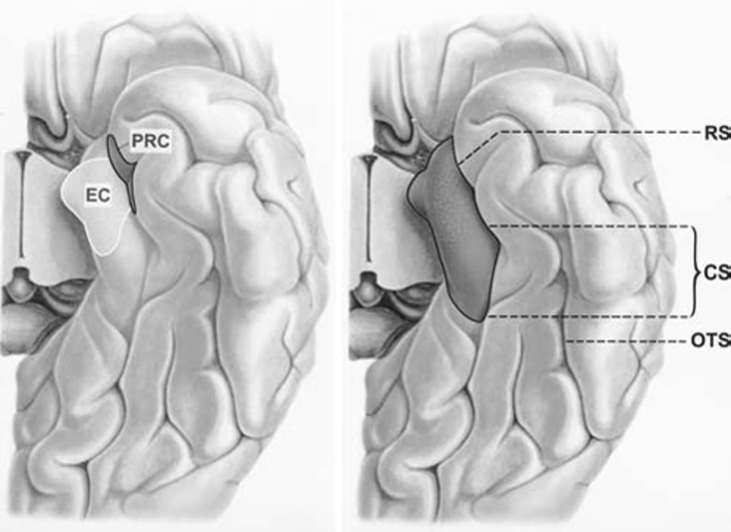 Individual Variations In The Sulcal Anatomy Of The Basal Temporal