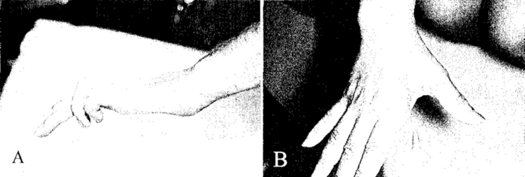 Surgical outcomes of 654 ulnar nerve lesions in: Journal of