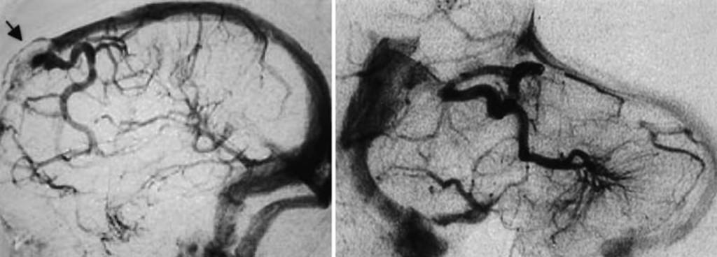 Developmental Venous Anomalies And Sinus Pericranii In The