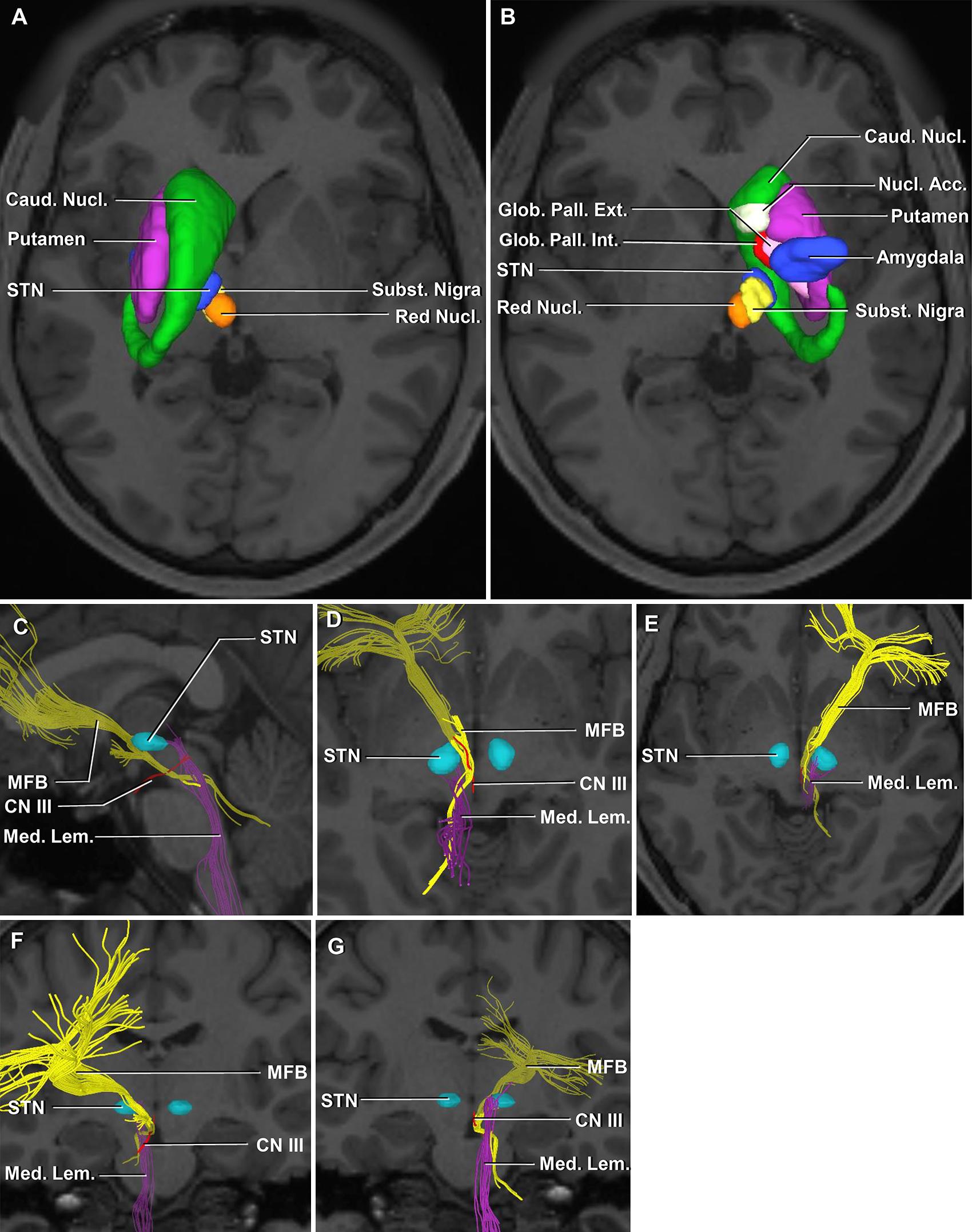 Microsurgical Anatomy Of The Subthalamic Nucleus Correlating Fiber
