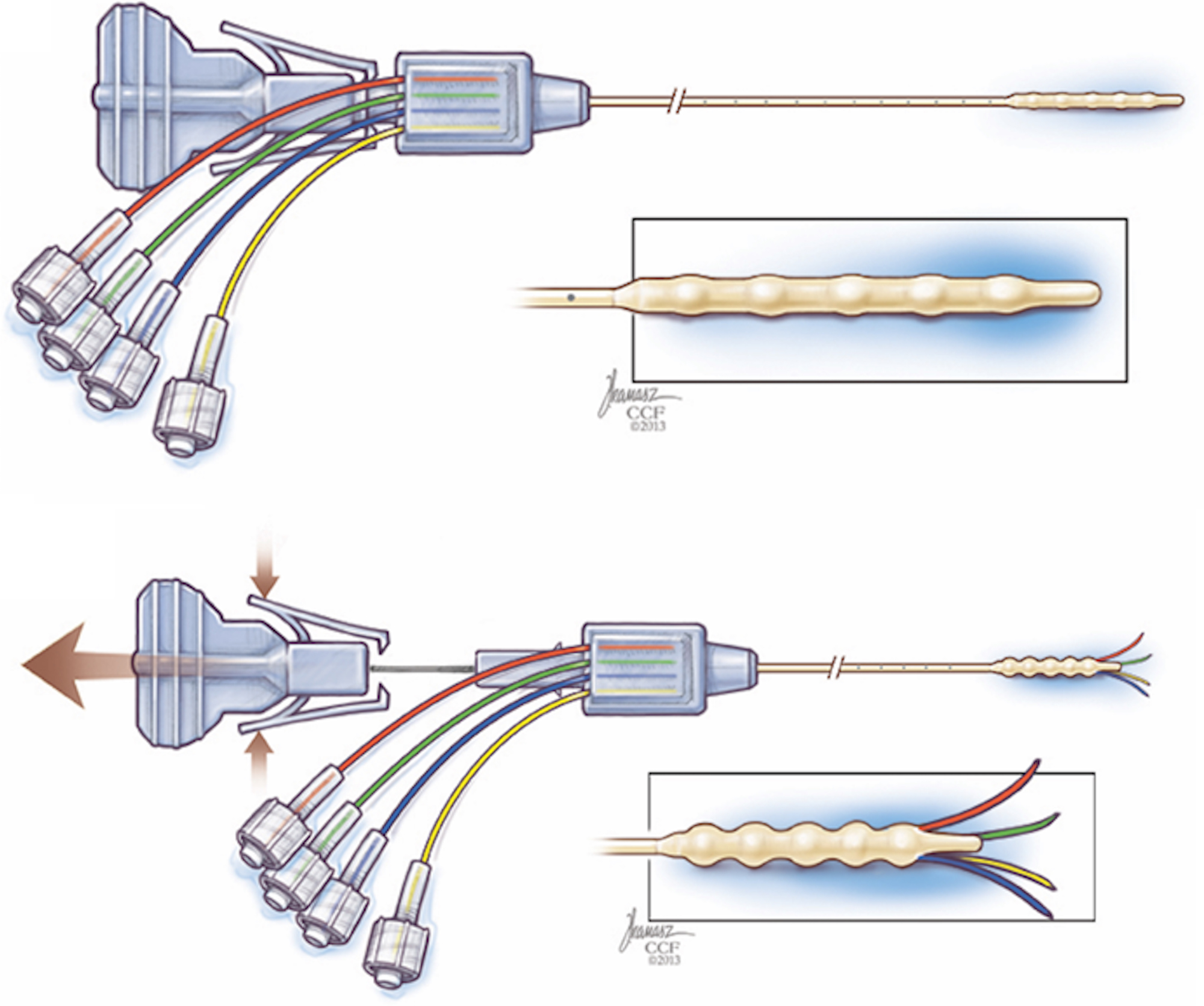 First In Human Evaluation Of The Cleveland Multiport Catheter For Steven Mark Diagram Wiring Fig 1