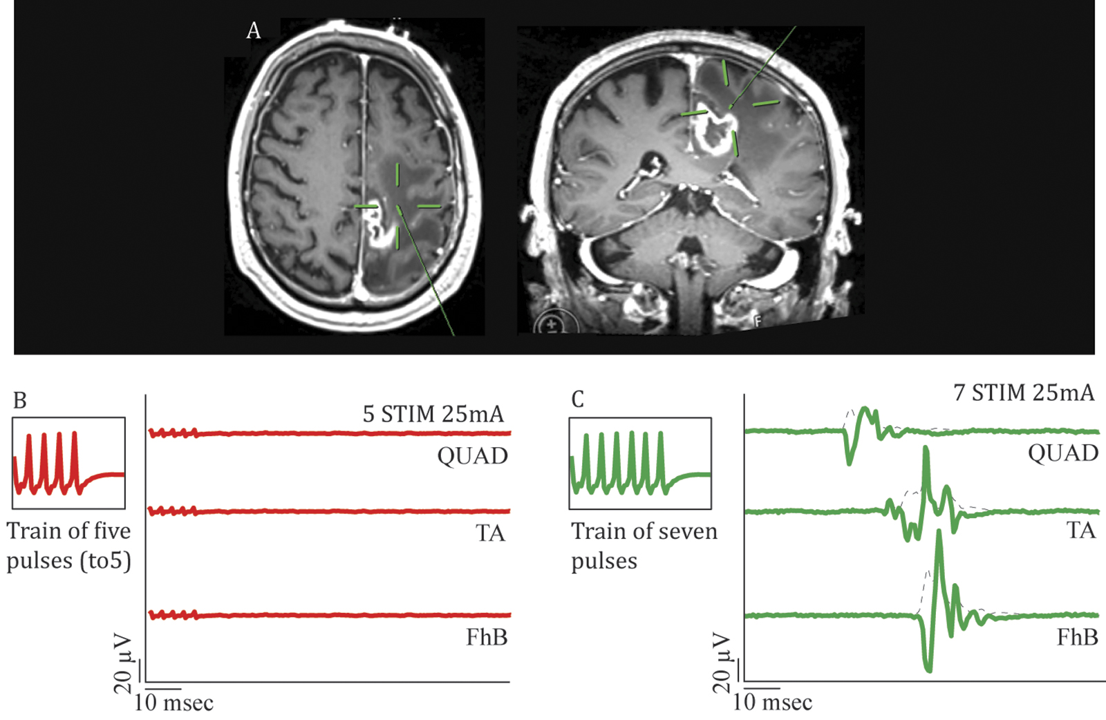 Resection of tumors within the primary motor cortex using